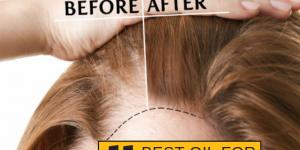 best oil for hair growth