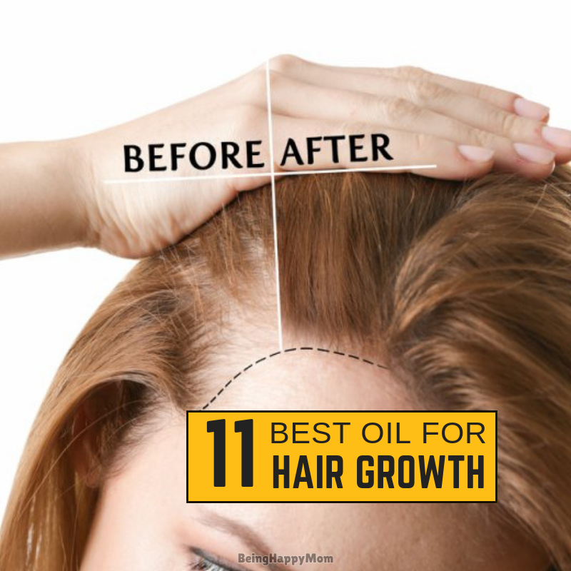 11 Best Oil For Hair Growth in India 2021 (Review & Comparison)