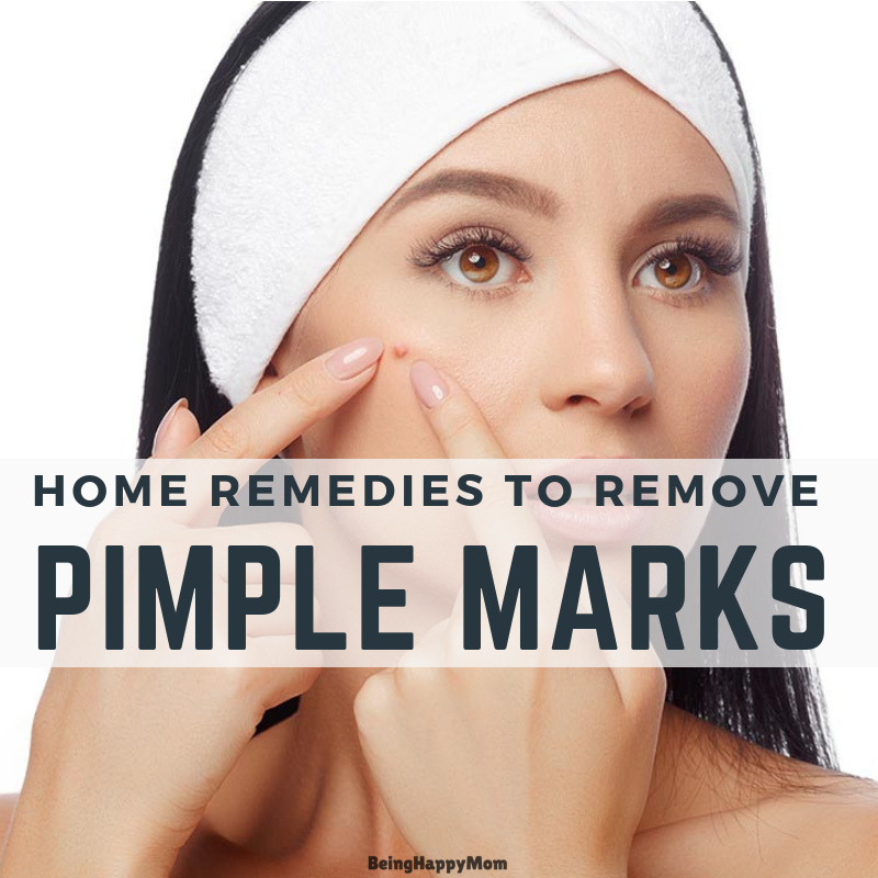 13 Home Remedies To Remove Pimple Marks Naturally in 2021