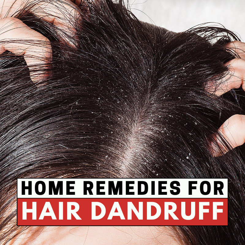 11 Home Remedies for Dandruff in 2020